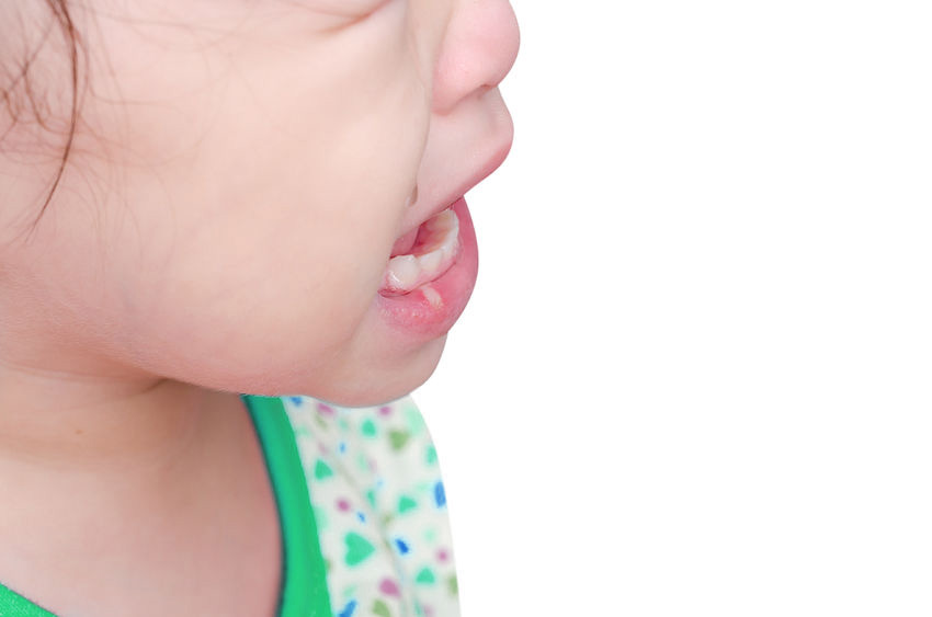 What is Aphthous Stomatitis in Children and How to Handle It